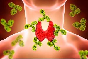 То, что Вы хотели бы знать о гипотиреозе – недостатке гормонов щитовидной железы (Окончание)