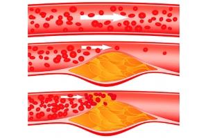 Как понизить холестерин без статинов и победить атеросклероз?